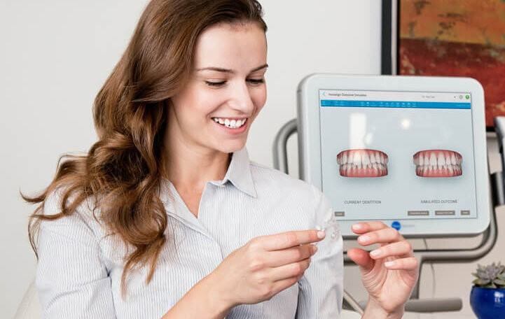 Clear aligner systems