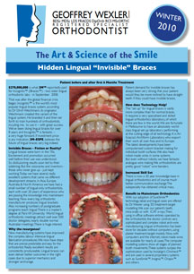 Art & science of the smile 5 - Lingual braces